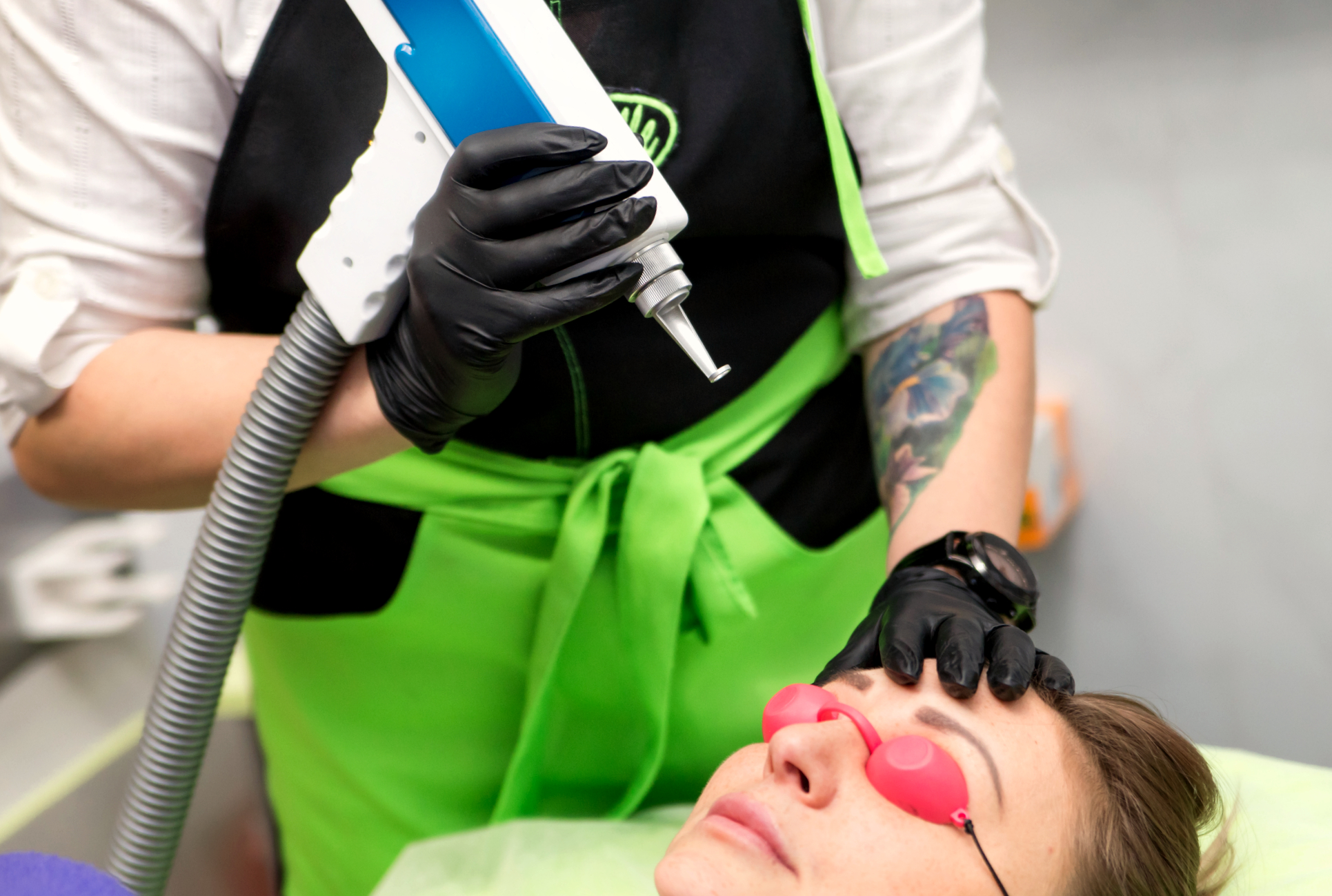 Лазерное удаление татуажа тату